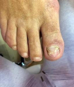 Nechtová protetika
